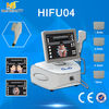 China Portable High Intensity Focused Ultrasound factory